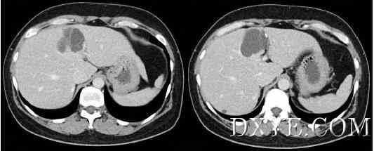 腹腔镜下肝黏液性囊性肿瘤切除术-病例报告