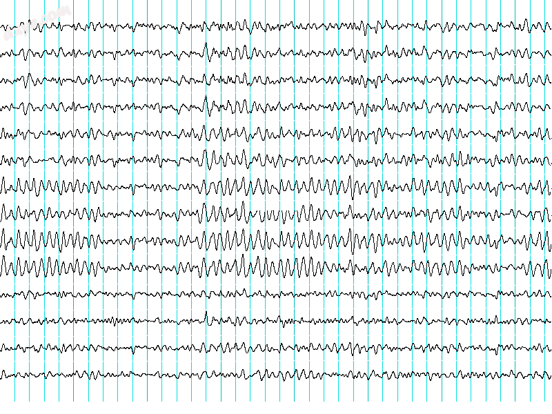 Recordings of brainwaves produced by an electroencephalogram.png